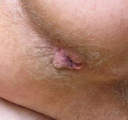 Can hemorrhoids be caused by anal sex